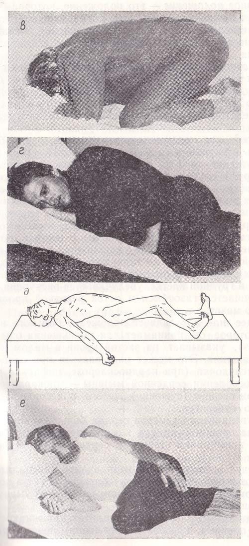 Вынужденное положение больного при сильных болях, вызванных язвенной болезнью, паранефрите или приступе аппендицита, столбняке, – менингите