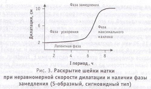 Раскрытие шейки матки при неравномерной скорости дилатации и наличии