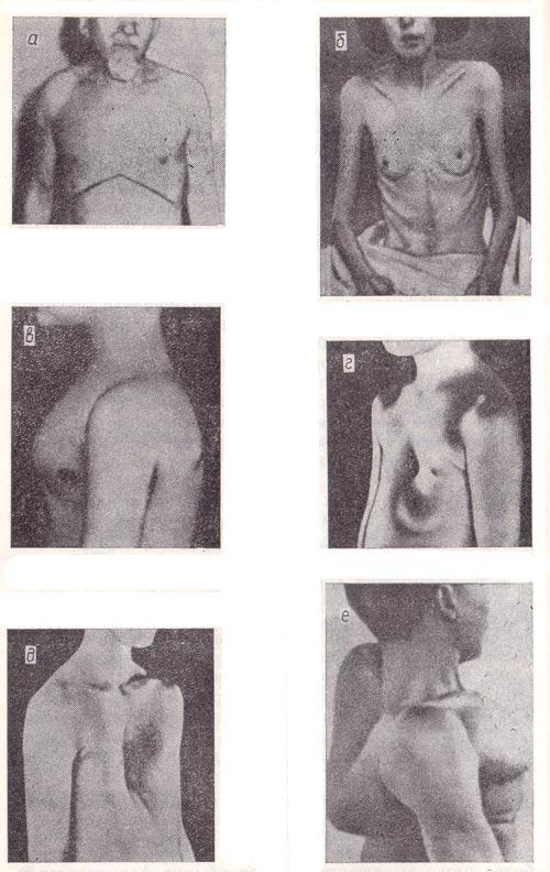 Форум об увеличения груди