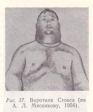 Воротник Стокса