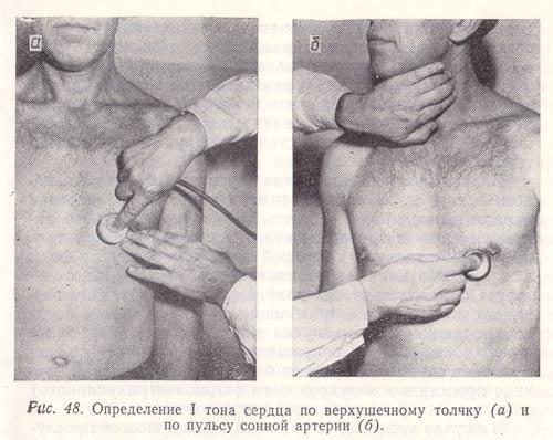 Определение I тона сердца по верхушечному толчку и по пульсу сонной артерии