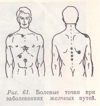 Описание: Болевые точки при заболеваниях желчных путей